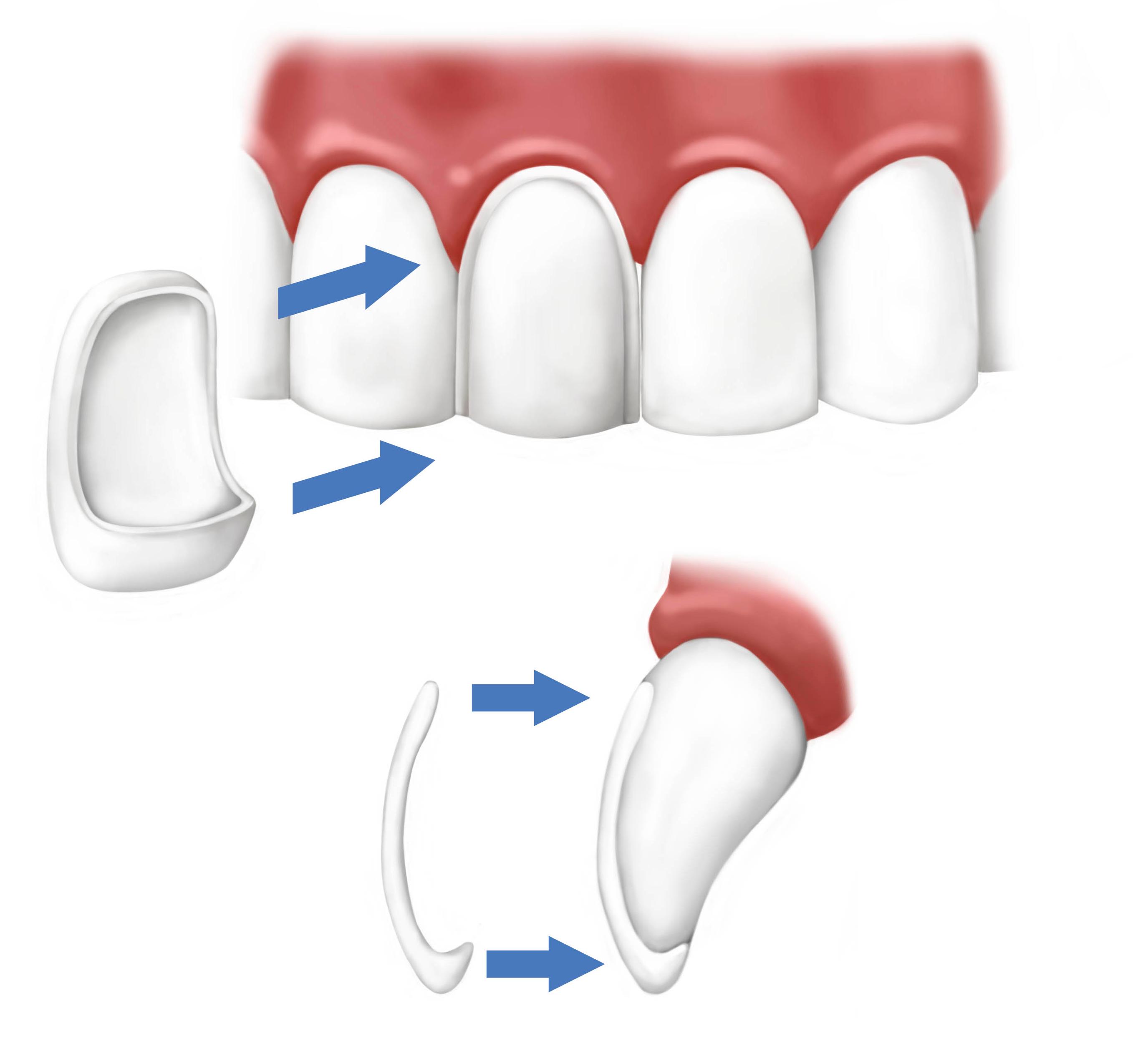 Faccette dentali dentista Palermo