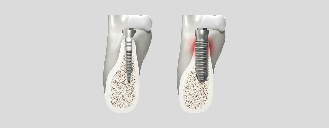 Implantologia senza osso Palermo