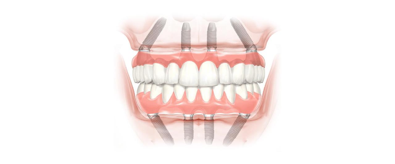 Implantologia senza osso, dentista specializzato a Palermo