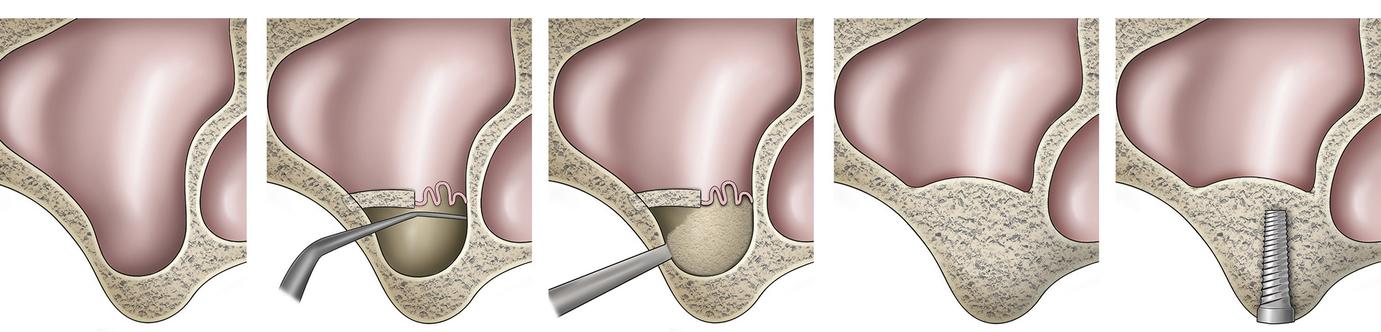 Sinus Lifting, tecnica per il rialzo del seno mascelalre, dentista Palermo