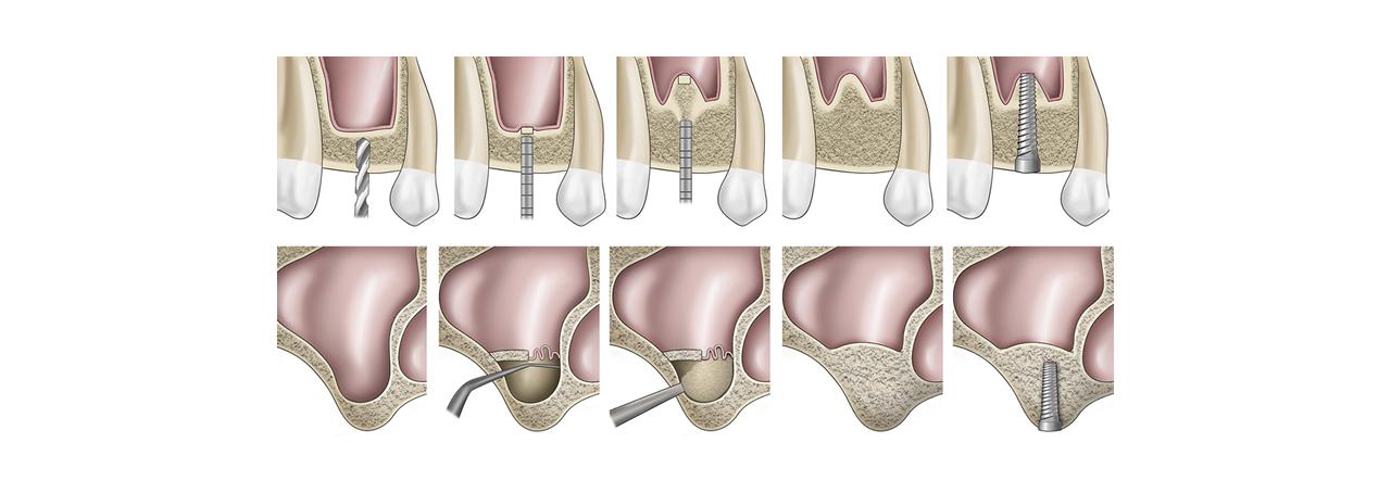 Sinus Lifting, tecnica per il rialzo del seno mascellare, implantologia Palermo